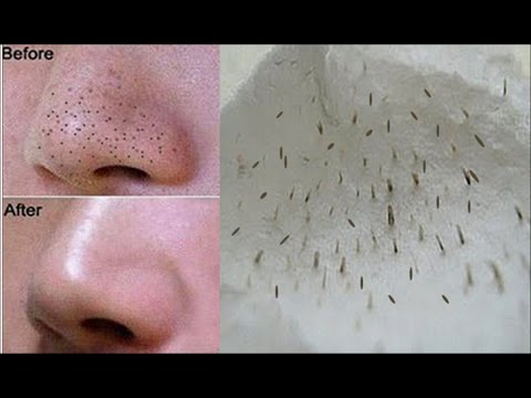 Do This To Remove Blackheads And Whiteheads From The Nose