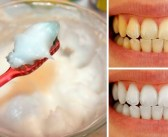 HOW I WHITEN MY BROWN TEETH AT HOME IN 5 MINUTES 100% WORKING