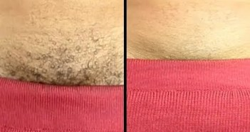 PERMANENTLY REMOVE PUBIC HAIR INSTANTLY USING NATURAL CREAM