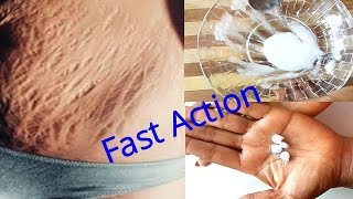 HOME REMEDY TO REMOVE STRETCH MARKS FAST