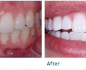 How I Whiten My Teeth Get White Teeth In 5 Minutes Result In Live Demo