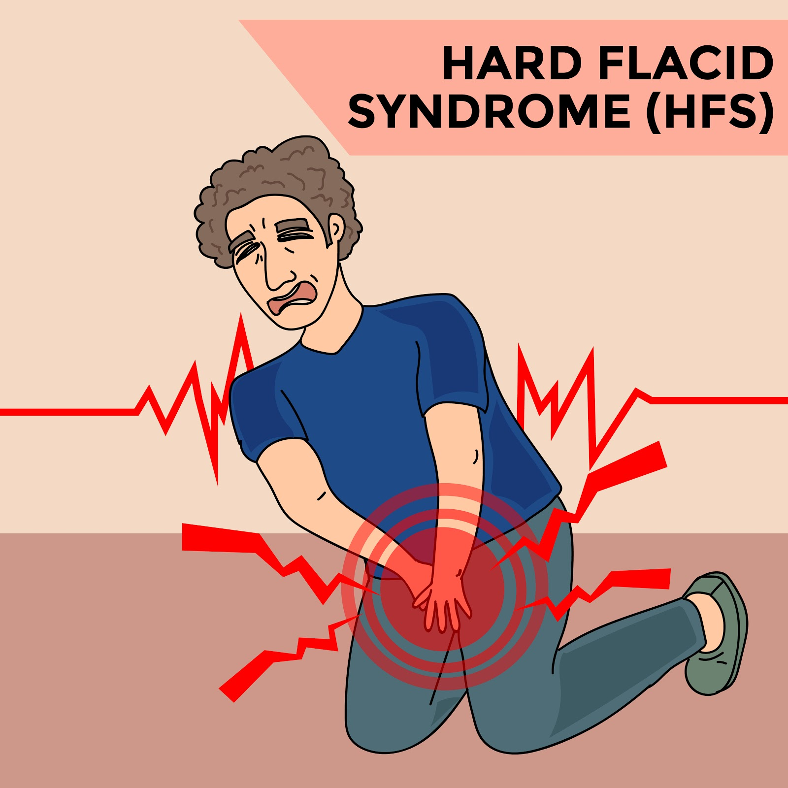 Hard Flaccid Syndrome