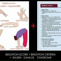 The Brighton Diagnostic Criteria for Ehlers-Danlos syndrome (EDS)