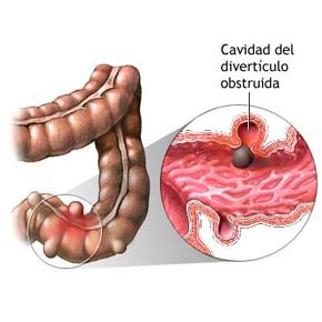 Dietas de bajo residuo en enfermedad diverticular: Poniendo fin a un mito