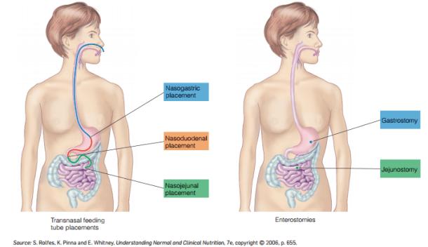 Ilustración 1. Accesos para la Alimentación Enteral