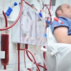 Prevalencia del Desgaste Proteico Energético (DPE) en Pacientes Renales Crónicos con Terapia sustitutiva de Hemodiálisis, en Retalhuleu Guatemala. Por: José Longo