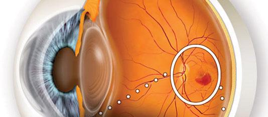O que é a Degeneração Macular Relacionada à Idade (DMRI)