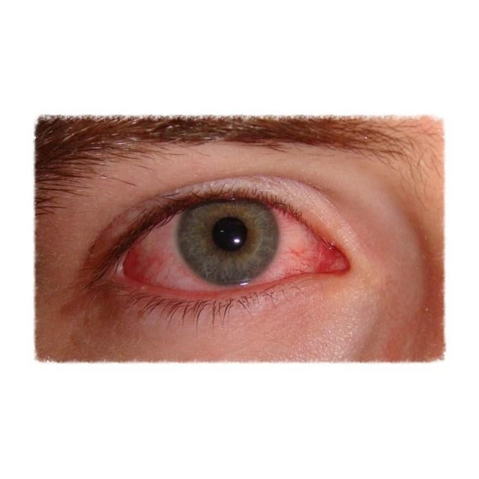 Olhos vermelhos: Quando me preocupar?