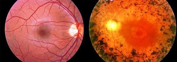 O que é retinose pigmentar?