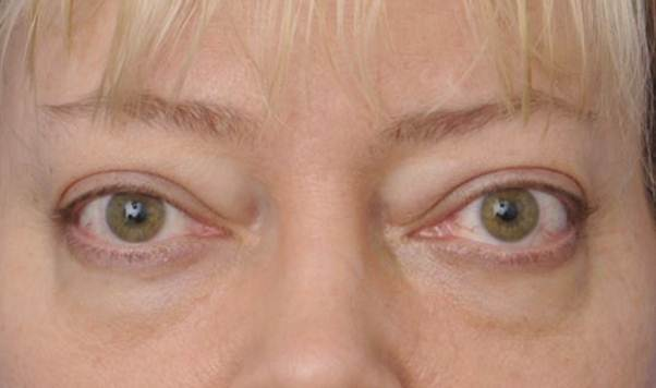 Alterações na tireoide também afetam nossos olhos