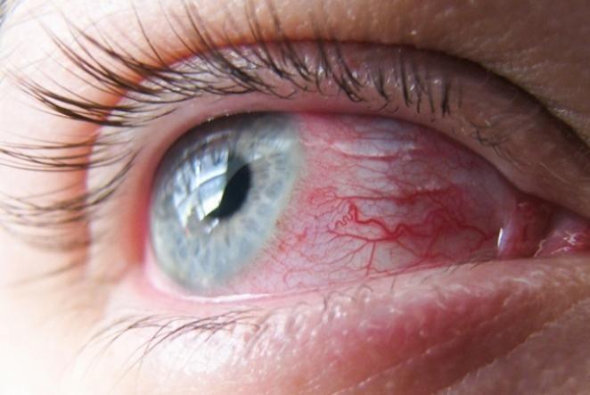 Olhos vermelhos: conheça 7 possíveis causas desse problema.
