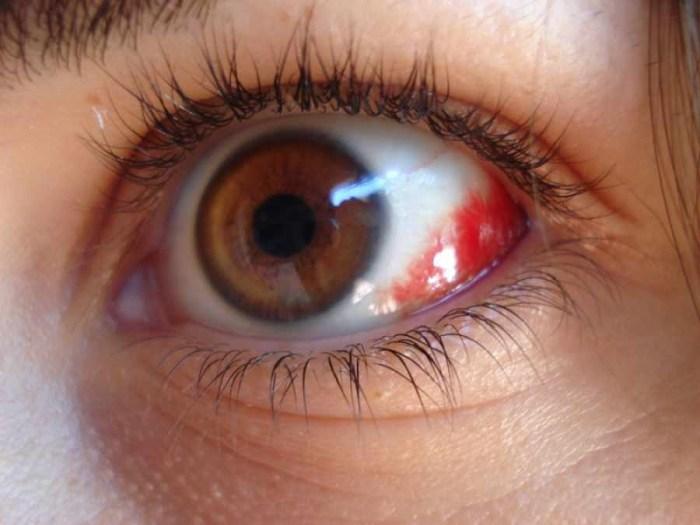 """""""Sangue nos olhos"""": devo me preocupar?"""