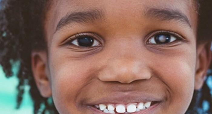Retinoblastoma tem cura, você sabia?