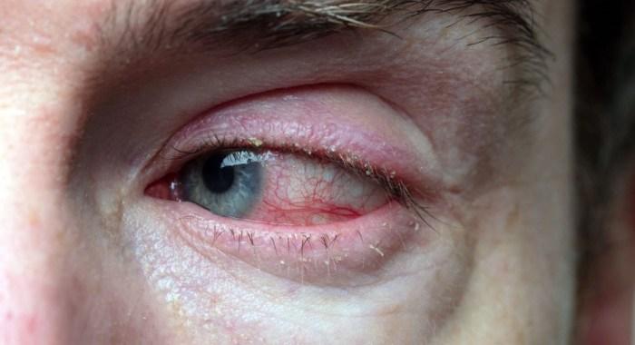 Blefarite: conheça a alteração ocular mais comum no mundo
