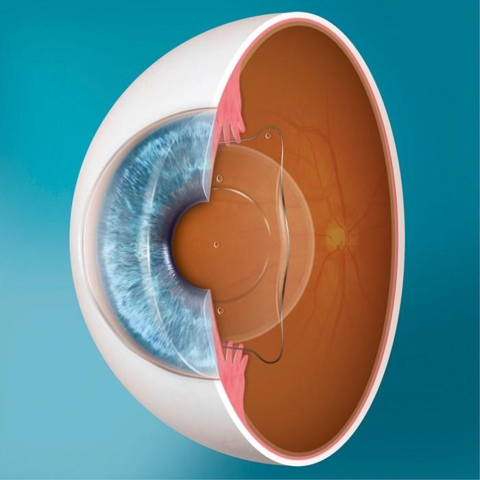 Lentes intraoculares Fácicas: uma solução para miopia e hipermetropia