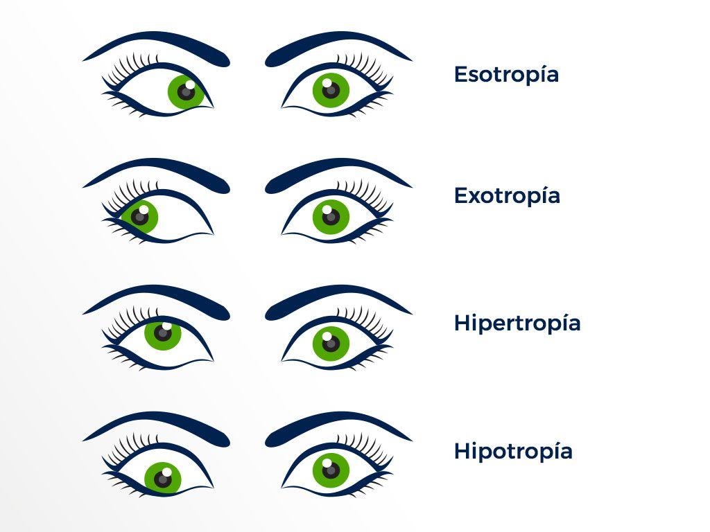 Tipos de Estrabimo | en Educando tu mirada | Valencia | Terapia visual