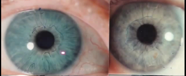 Blue eye iris comparison