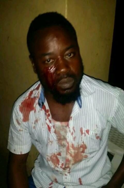 Injured Jimi Fatunbi