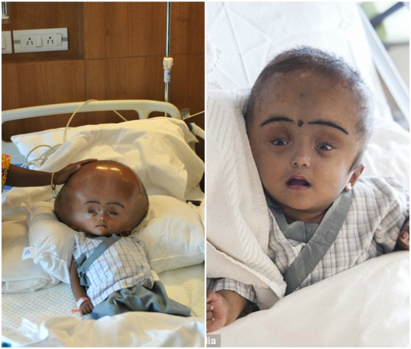 5-year-old Baby With Head Three Times Normal Size Dies