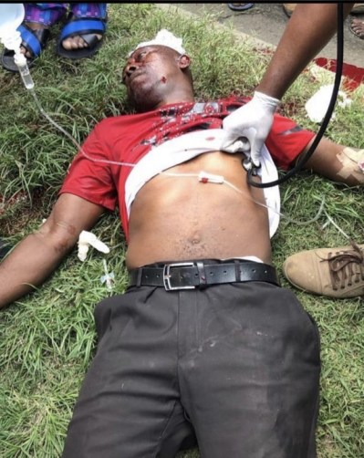 One dead, several injured as police shoots #EndSARS protesters in Surulere (Video + Photos)
