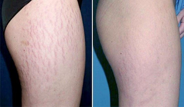 Microdermabrasion For Stretch Marks On Black Skin Rash - MVlC