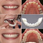 Effective Orthodontic Dental Appliance Trainer Tooth Orthodontic Braces Alignment Braces For Teeth Straight Alignment