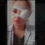VIDEO: Naine kaotas silma, kui tahtis musitada hulkuvat koera (NB! Nõrganärvilistele mittesoovitav)
