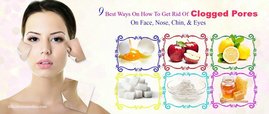Clogged White Nose Pores