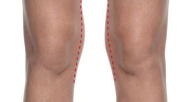 Exercices pour les genoux,exercices genoux, mal de genoux, genoux en forme, maigrir