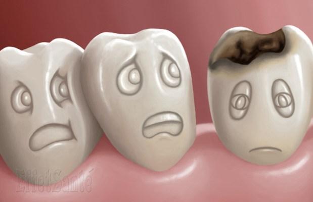 les caries chez les enfants, caries et les dents, carie, carie dent de lait, comment traiter les caries