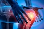 Des douleurs dans les genoux? Il y a une solution