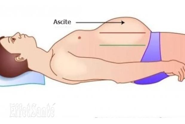 ascite, l'ascite, maladies du ventre, maladies abdominale, foie, maladies du foie, cirrhose