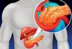 Le pancréas - un organe vital dont les symptômes sont ignorés dans 90% des cas