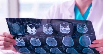notre cerveau, la santé de notre cerveau
