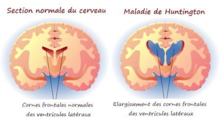 maladie neurologique