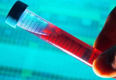 Les virus et les microbes les plus dangereux qui affectent l'humanité