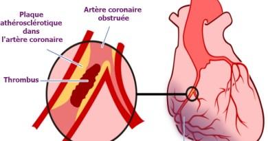 infarctus, infarctus du myocarde