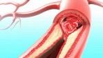 Quoi manger pour un sang propre et sans toxines