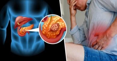 cancer de pancréas, le pancréas, comment se protéger de cancer