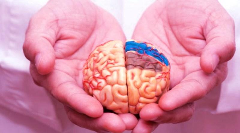 Tests qui révèlent si vous êtes à risque d'accident vasculaire cérébral