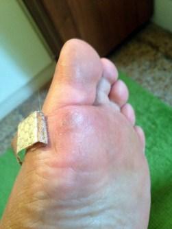 Florence toe