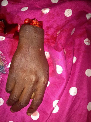 Boys hands chopped off in Sapele for trying to steal2