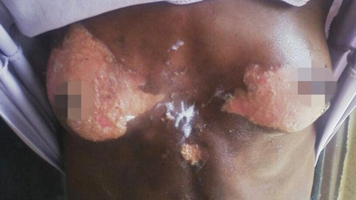 The victims damaged breast