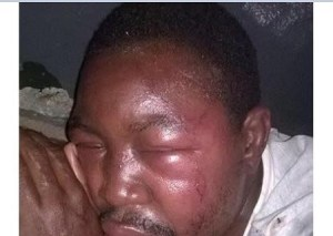 Father beaten to pulp by relatives for refusing to allow his daughter circumcised (Photo)