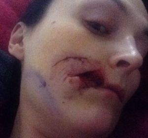 Woman bites a chunk of face of another woman2