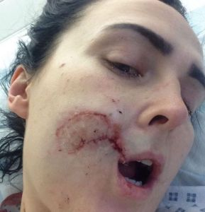 Woman bites a chunk of face of another woman3