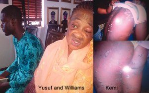 (L to R) Yusuf and Williams and burnt victim, Kemi