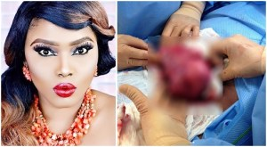 Kogi born Halima Abubakar opens up about her fibroid removal surgery in India
