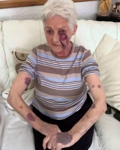80-year-old grandmother gets beaten black and blue at her own birthday party
