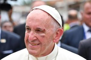 Pope Francis gets black eye, bruises after mobile accident [Photos]